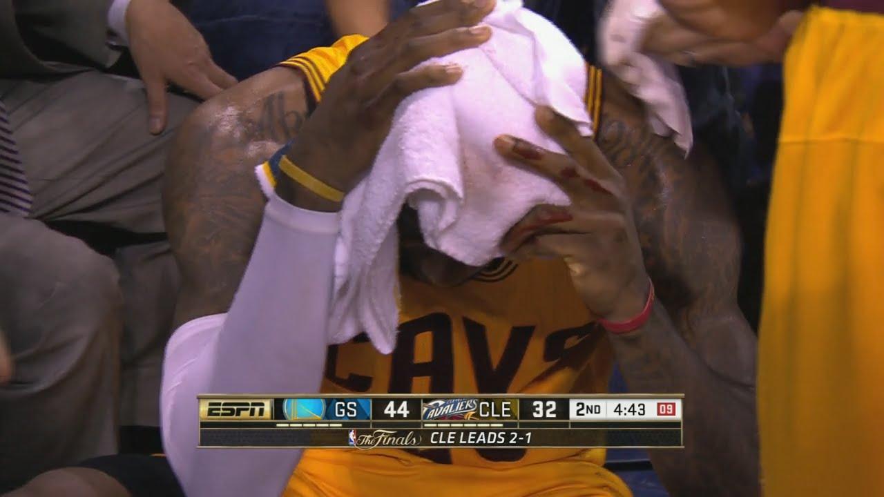 Vidéo: la blessure à la tête de LeBron James
