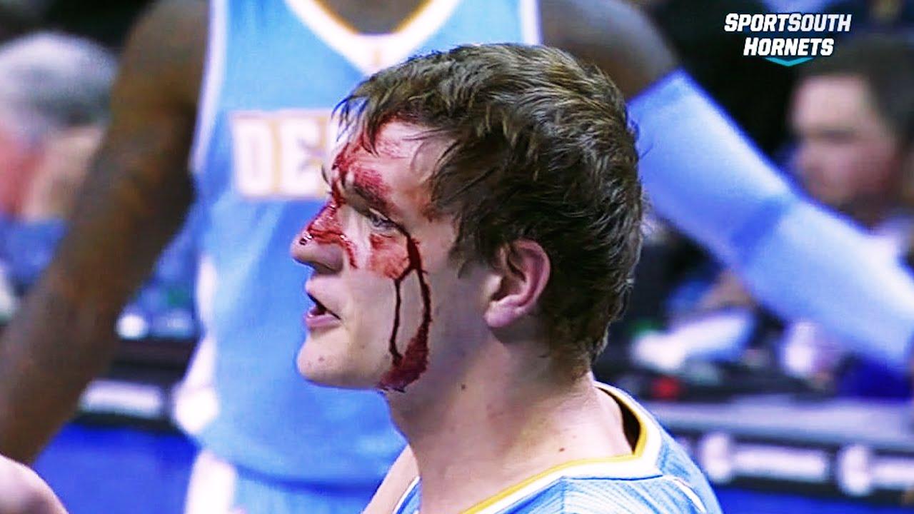 Vidéo : les blessures les plus douloureuses de la saison